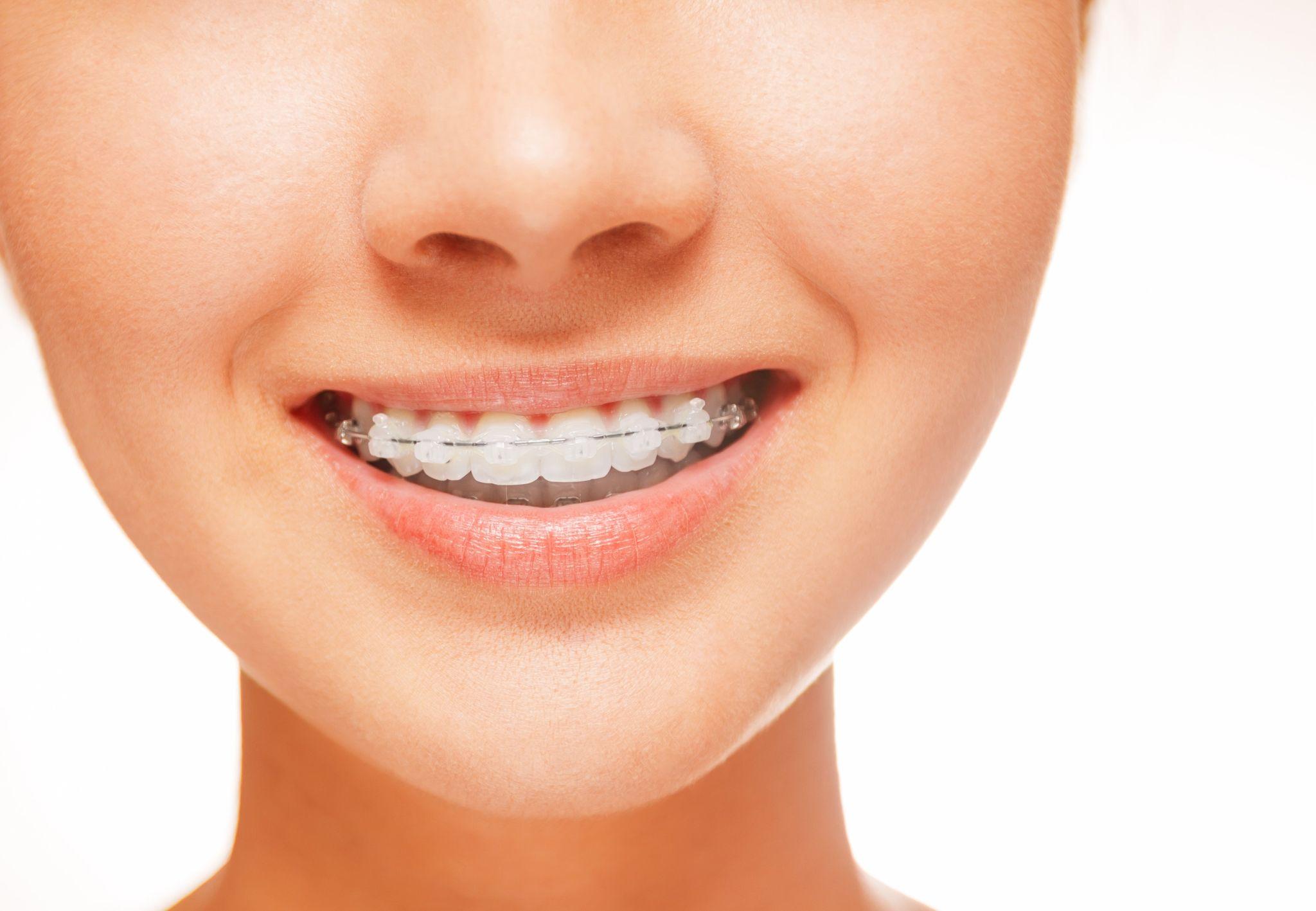 Невидимото бижу на красивата усмивка! Красива усмивка в ортодонтска клиника ОртоСмайл. Лечение на криви зъби с новите ортодонтски апарати, брекети и системи алайнери!
